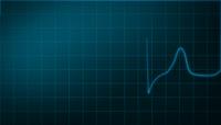 高清视频素材心脏活动心电图
