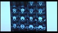 X光片视频实拍