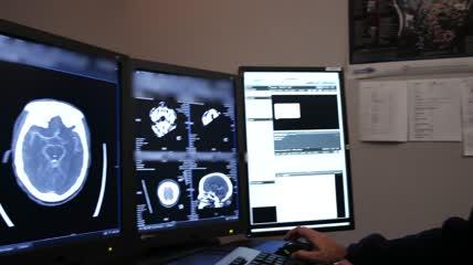 人工智能 中风病人 医生 医院 治疗疾病